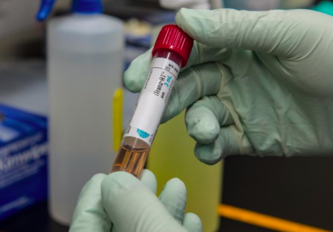 A test tube with viral transport media that contained a patient's sample to be tested for the presence of SARS-CoV-2, the virus that causes COVID-19. (provided by the CDC)